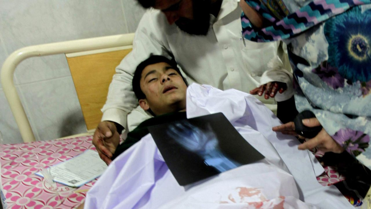 Chłopiec ranny podczas ataku talibów na szkołę w Peszawarze (fot. AP/EPA/ARSHAD ARBAB)