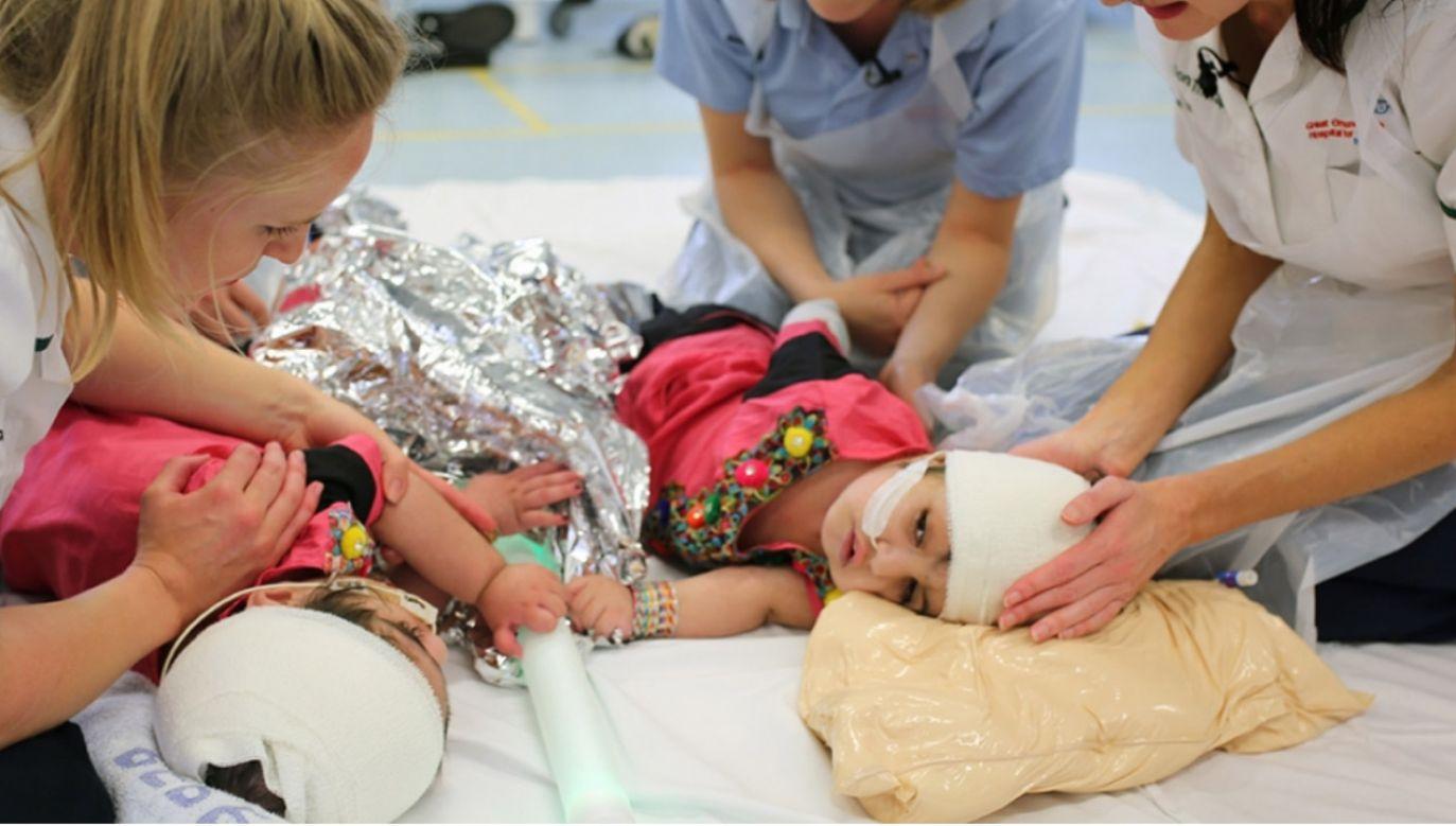 Safy i Marwy Ullah po udanej operacji (fot. Great Ormond Street Hospital)